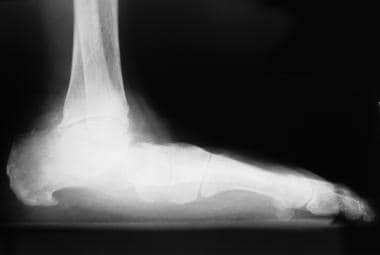 Medial arch collapse associated with valgus deform