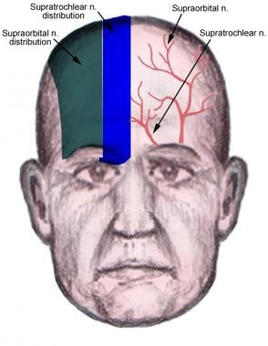 Forehead innervation by supraorbital and supratroc