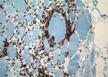 Polymyositis, immunohistochemistry for CD3 (T-lymp