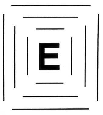 "Eccentric ""E"" used to retrain fixation away from a"