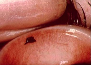 Conjunctival foreign body on upper lid.