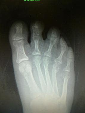 Radiograph shows malunited 4th metatarsal neck fra
