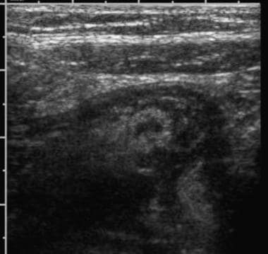 Ultrasonographic examination of right lower quadra