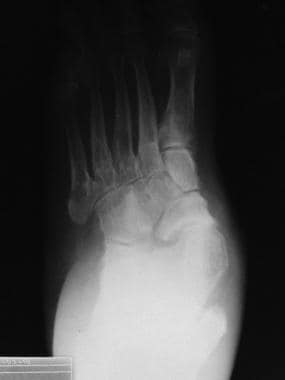 Valgus foot deformity with medial dislocation of t