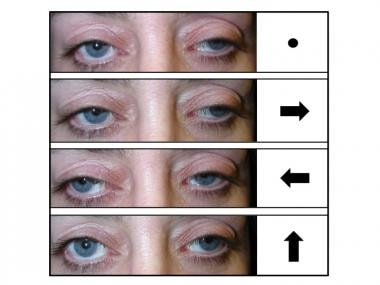 Bilateral ptosis and external ophthalmoplegia. Top