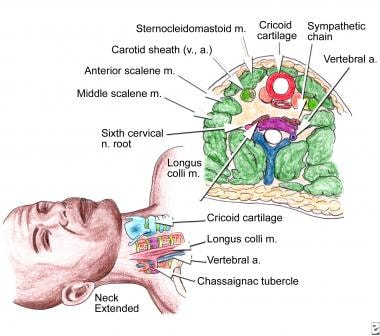Stellate block, important anatomical landmarks (su