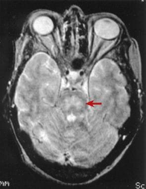 T2-weighted MRI scan of the brain demonstrating pa
