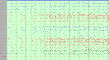 Electroencephalogram demonstrating a right frontal