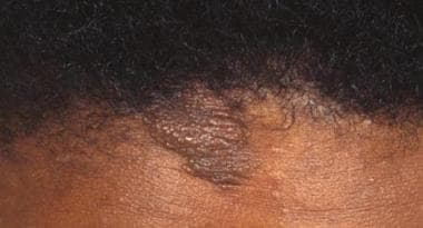 Forehead plaque in a patient with tuberous scleros