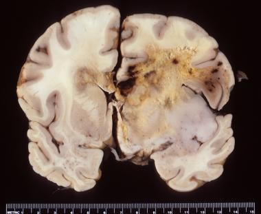 Gross photograph of a glioblastoma with diffuse he