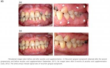 Periodontal images taken before and after ascorbic