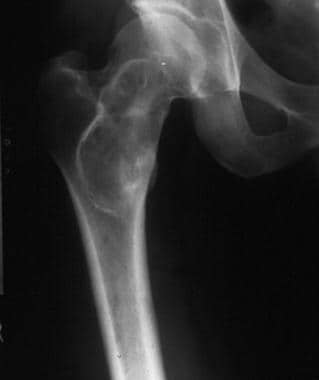 Plain film shows a lytic lesion of the femoral nec