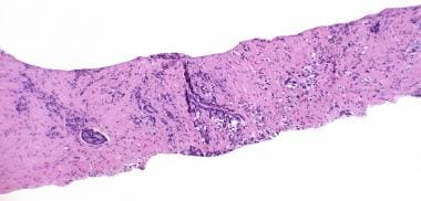 Postradiation Therapy Pathology of Prostate Cancer