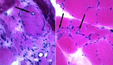 Inclusion body myositis (IBM), rimmed vacuoles, on