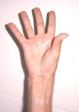 Postoperative photo of a hand following a Camitz a