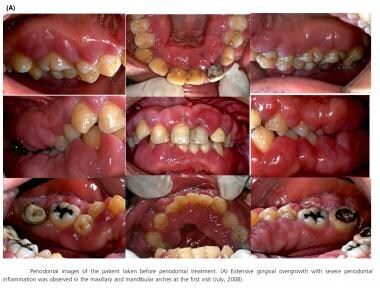 Periodontal images of the patient taken before per