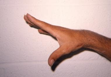 Postoperative photo of the same hand following a C