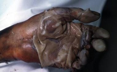 Postmortem degloving of the hand.