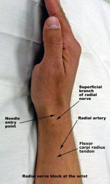 Radial nerve block at the wrist.