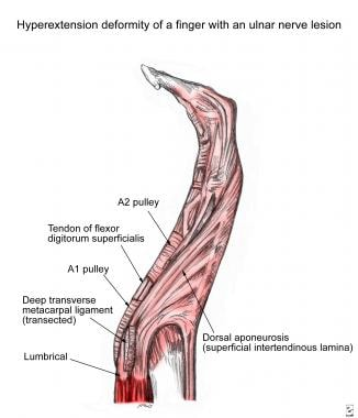 Hyperextension deformity in ulnar nerve paralysis.