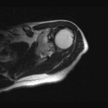 A T1-weighted magnetic resonance image of the shou