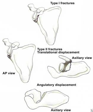 Classification of glenoid neck fractures. Type I i
