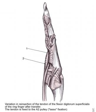 The Zancolli lasso procedure, in which the flexor