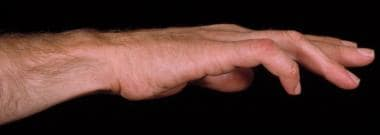 Preoperative photo of a hand with claw deformity.