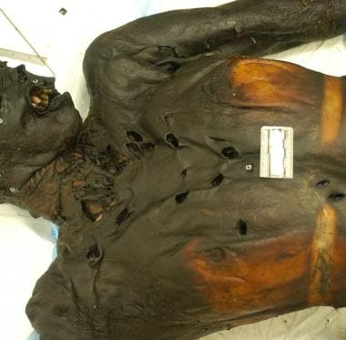 Mummification of this homicide victim occurred aft