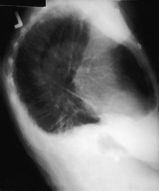 Chest radiograph, lateral view shows loss of bilat