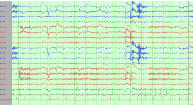 Electroencephalogram demonstrating repetitive cent