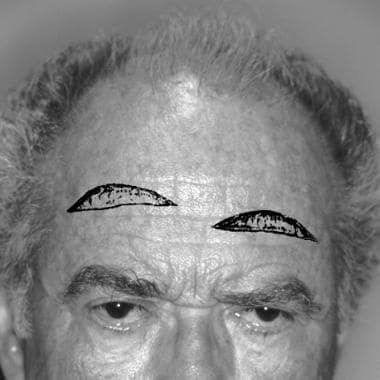 Several different incisions for mid forehead lifts