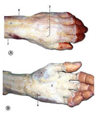 Subcutaneous structures of the left hand. A is the
