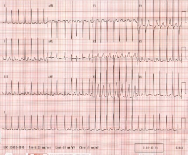 Ventricular rate varies from 130-168 beats per min