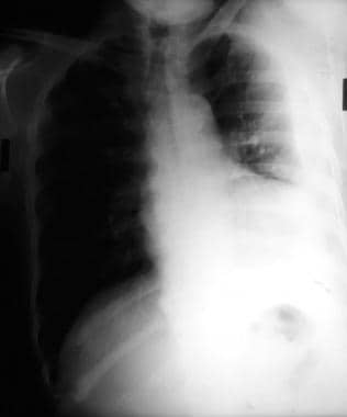 Left lateral decubitus chest radiograph shows flui