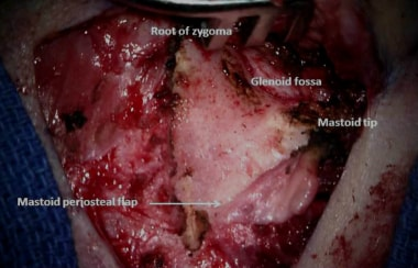 Intraoperative image of the bony landmarks used to