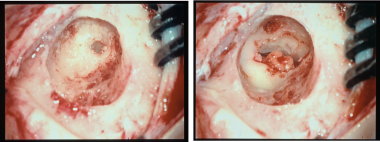 Intraoperative image of a left ear in the surgical