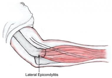 Lateral epicondyle.