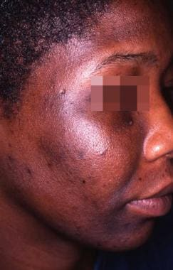 "Minocycline ""muddy"" pigmentation of the face in ph"