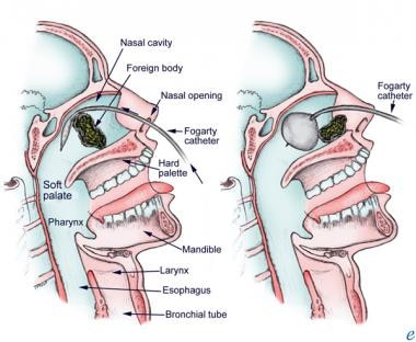 Use of a Fogarty catheter to remove a nasal foreig