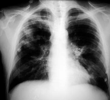 Chest radiograph in a patient with HIV infection a
