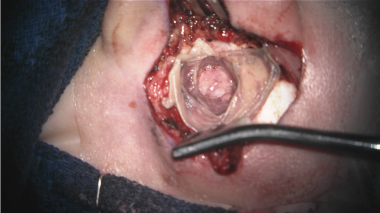 Intraoperative image of a right ear with the skin