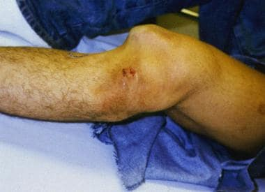 Lateral knee dislocation (before reduction).