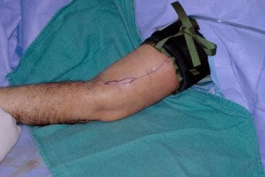 Same patient whose humerus was fractured by a guns