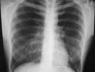 A 38-year-old patient with Mycoplasma pneumonia. C