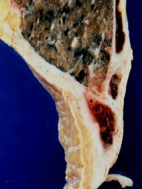 Pathology of nonmesothelial cancers of the pleura.