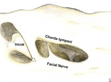 Exposure of the facial nerve after a cortical mast