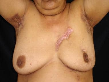 Axillary hidradenitis suppurativa in a patient wit