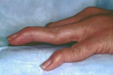 Rheumatoid arthritis. Rheumatoid changes in the ha