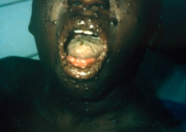 Boy with monkeypox in Democratic Republic of the C